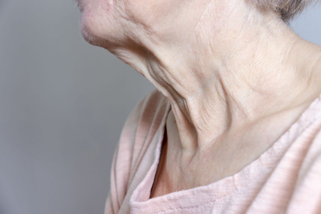 Loose skin along a woman's neck