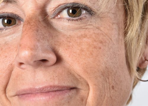 Middle-aged woman with age spots on her face