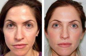 Before and after photo of a women who's had botox injections