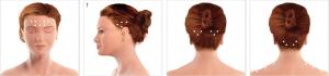 Localized headaches on the female head representation.