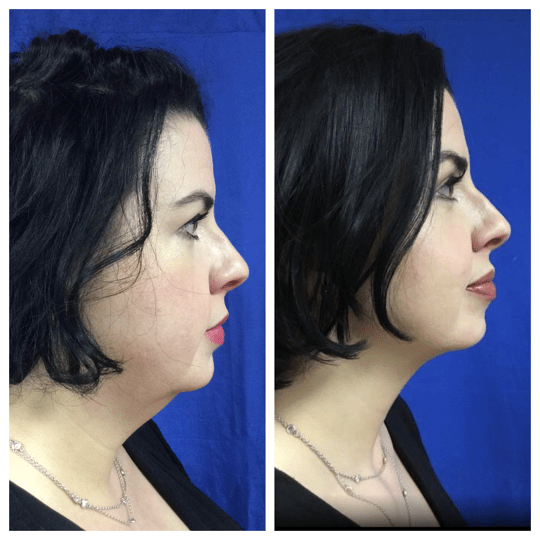 kybella before and after injections photo