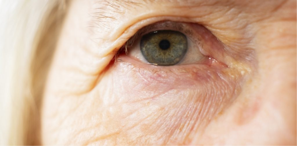 Older woman's droopy eyelids