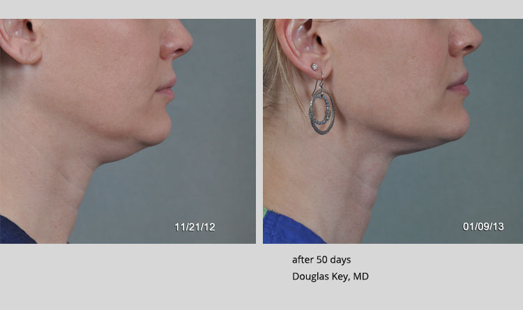 before and after photo for thermitight by Douglas Key, MD