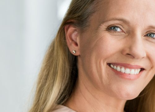 Happy middle-age woman who received facial resurfacing