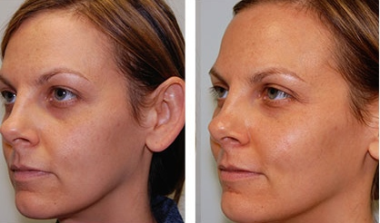 woman before and after botox injections in Richmond, VA.