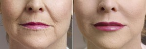 before and after collagen photo of a woman's lips