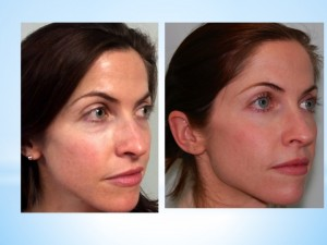 photo of a woman before and after juvederm voluma