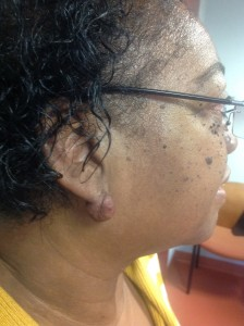 keloid removal from a woman's ear, pre treatment.