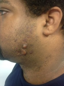 keloids on a patient's face before cryoshape treatment