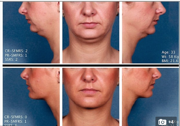 Kybella ATX-101 before and after treatment image.