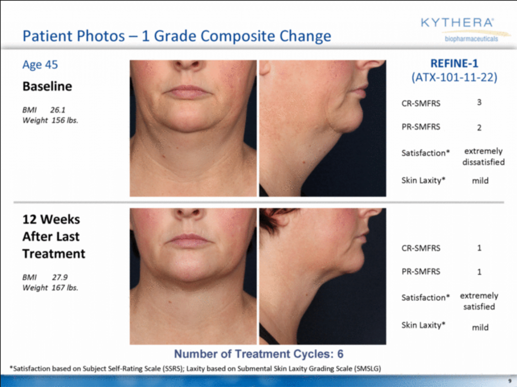 kybella treatment results for 45 year old patient in richmond va