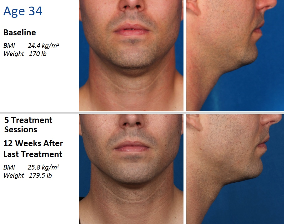 kybella injection before and after photos of 34 year old male