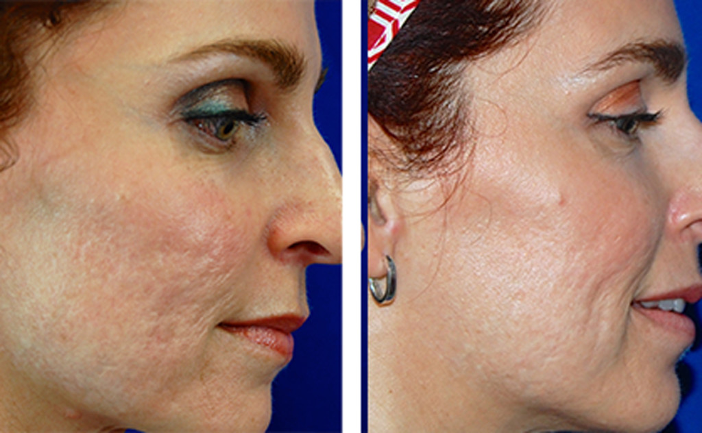 Before and after laser scar removal treatment photo