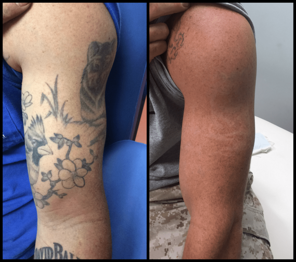 bird and branch tattoo removal before and after photo