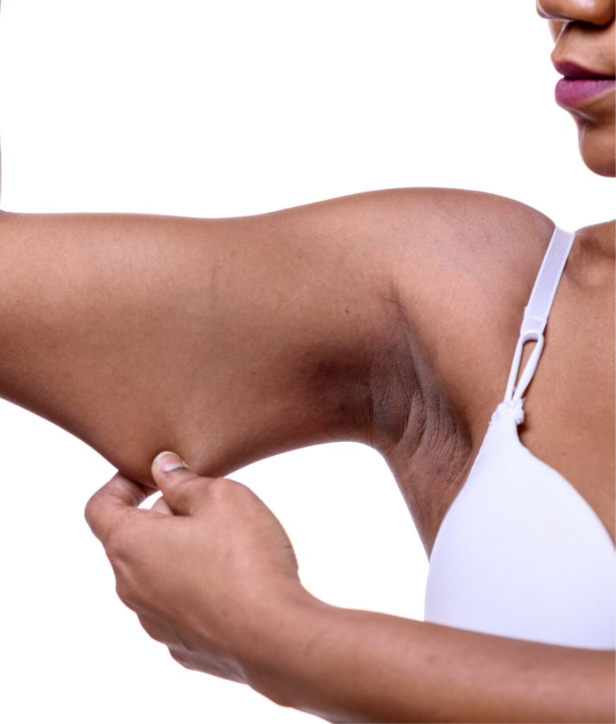 Woman pulling on loose skin on her arm