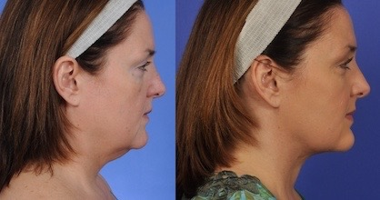 non-surgical skin tightening before and after image
