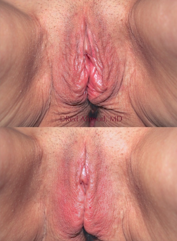 photo of a vagina before and after non-surgical rejuvenation