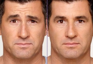before and after image of a man who's had botox.