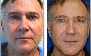 facial resurfacing for men before and after image