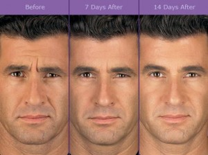 photo of a man after botox treatment.