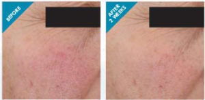SkinCeuticals treatment before and after photo
