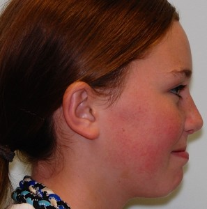 girl with injured nose after rhinoplasty surgery