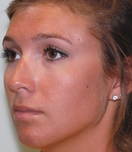 rhinoplasty procedure after the surgery