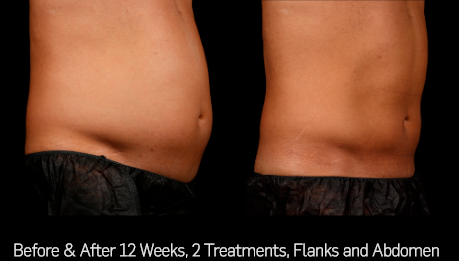 before and after 12 weeks, 2 treatments with sculpsure on flanks and abdomen