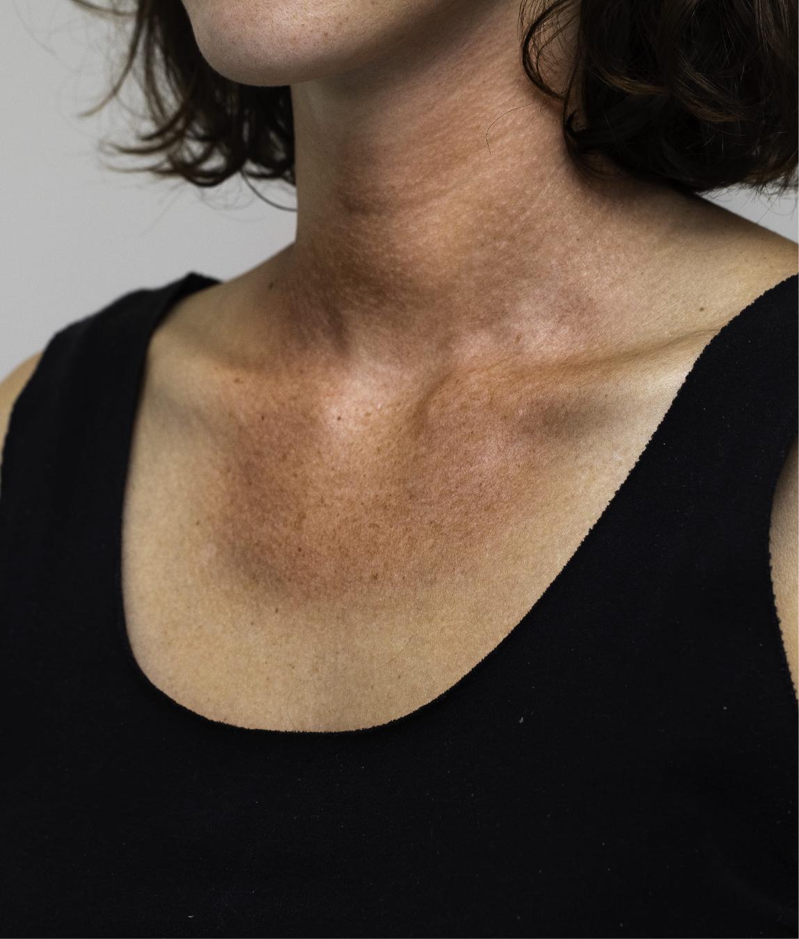 Sun damage in the neck area