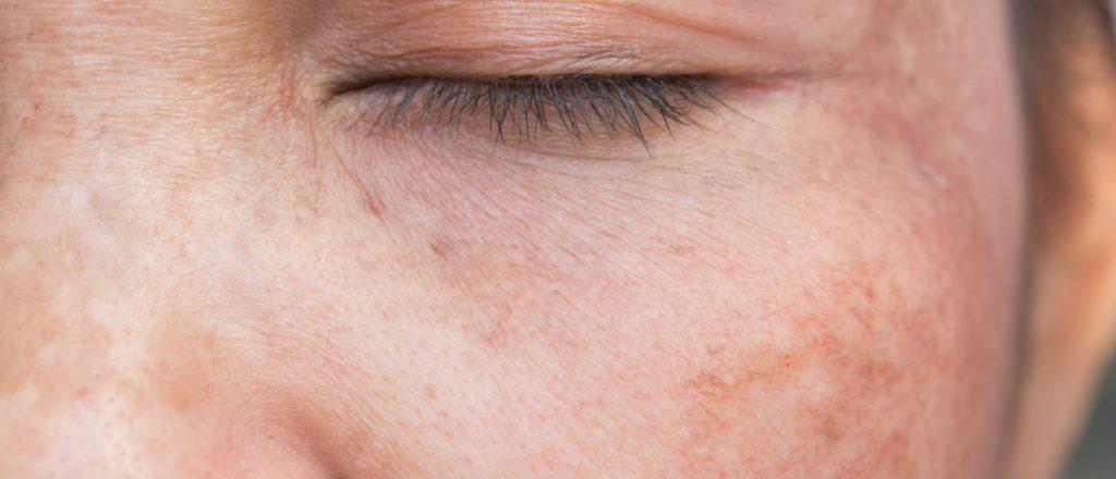 Sun damage on a face