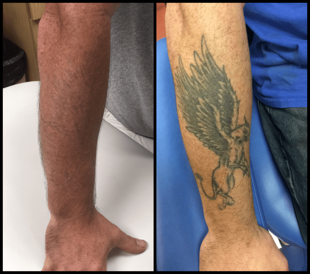griffin tattoo removal before and after photo