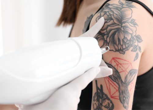 A woman undergoing a tattoo removal procedure