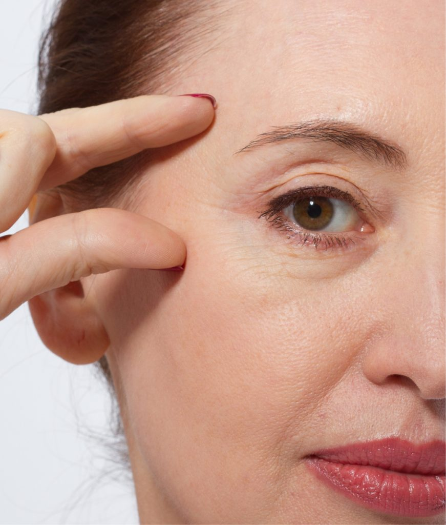 woman examining her face for under-eye bags