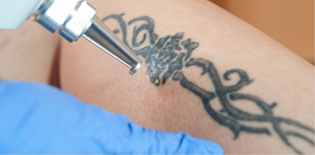 laser demostration of removing unwanted tattoos