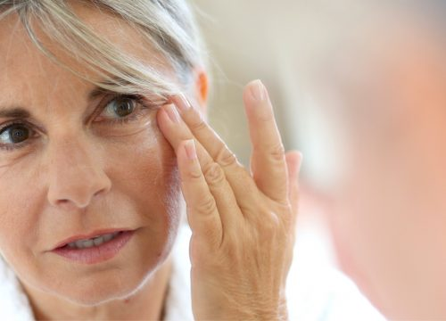 Woman with wrinkles and fine lines