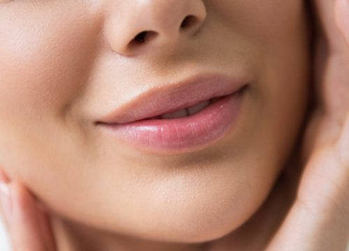Close-up on a woman's lips after Restylane treatments