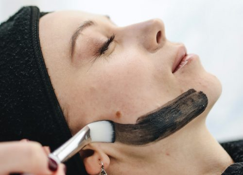 Woman receiving a carbon laser facial