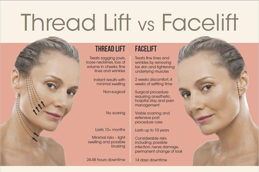 Thread Lift vs. Face Lift comparison